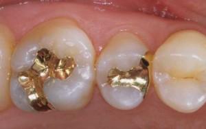 ゴールドキャストインレー1治療後