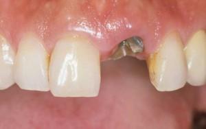 義歯治療前
