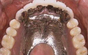 義歯1治療後